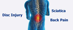 disc injury, disk herniation, sciatica, back pain