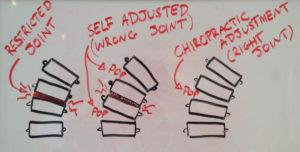 Self-adjusting-neck-clicking